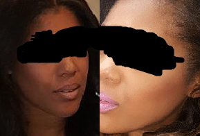 black and white bleaching cream.png