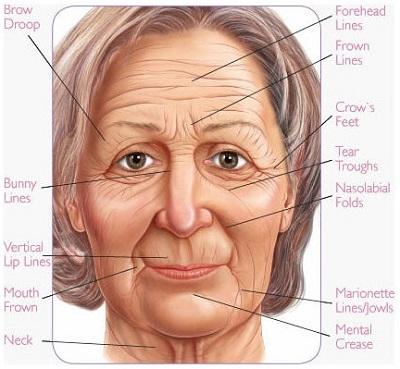 cheek wrinkles.jpg