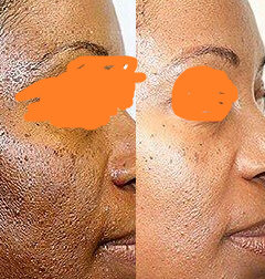 chemical peel for acne.png