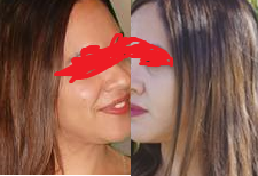 glutathione for skin whitening.png