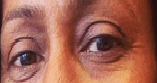 periorbital hyperpigmentation.png