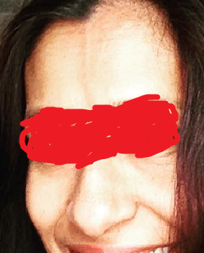 skinlite cream result.png