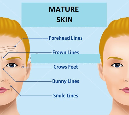 what is Mature Skin.jpg